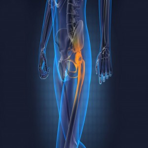 Global Orthopedics Devices Market