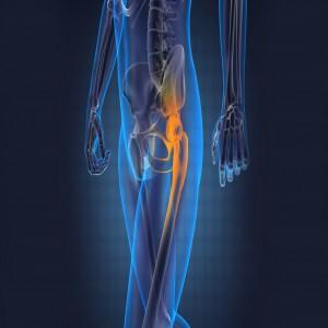 Global Orthopedics Devices Market