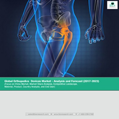 Global Orthopedics Devices Market - Analysis and Forecast(2017-2023): (Focus on China Market, Market Share Analysis, Competitive Landscape, Material, Product, Country Analysis, and End User)