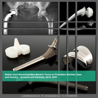 Global Joint Reconstruction Market - Analysis and Forecast, 2018-2025: Focus on Procedure Number, Type, and Country